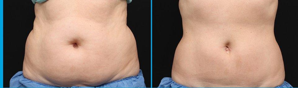 8 semaines après le traitement Coolsculpting-pour un ventre plat cet été