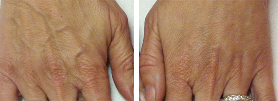 Comblement des mains : avant, après.